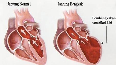 kardiomegali