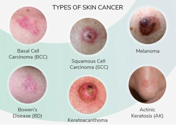 Kanker Kulit A-Z - Penyebab - Gejala - Pengobatan - IDN Medis