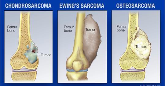 Kanker Tulang A-Z - Penyebab - Gejala - Pengobatan - IDN Medis