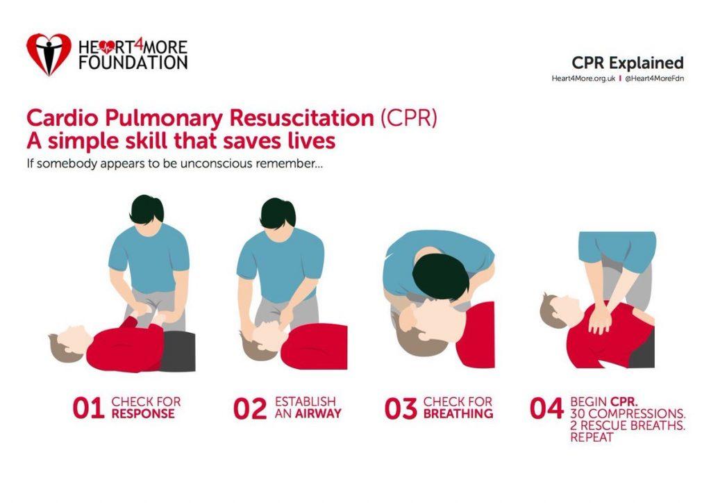 langkah-langkah melakukan CPR