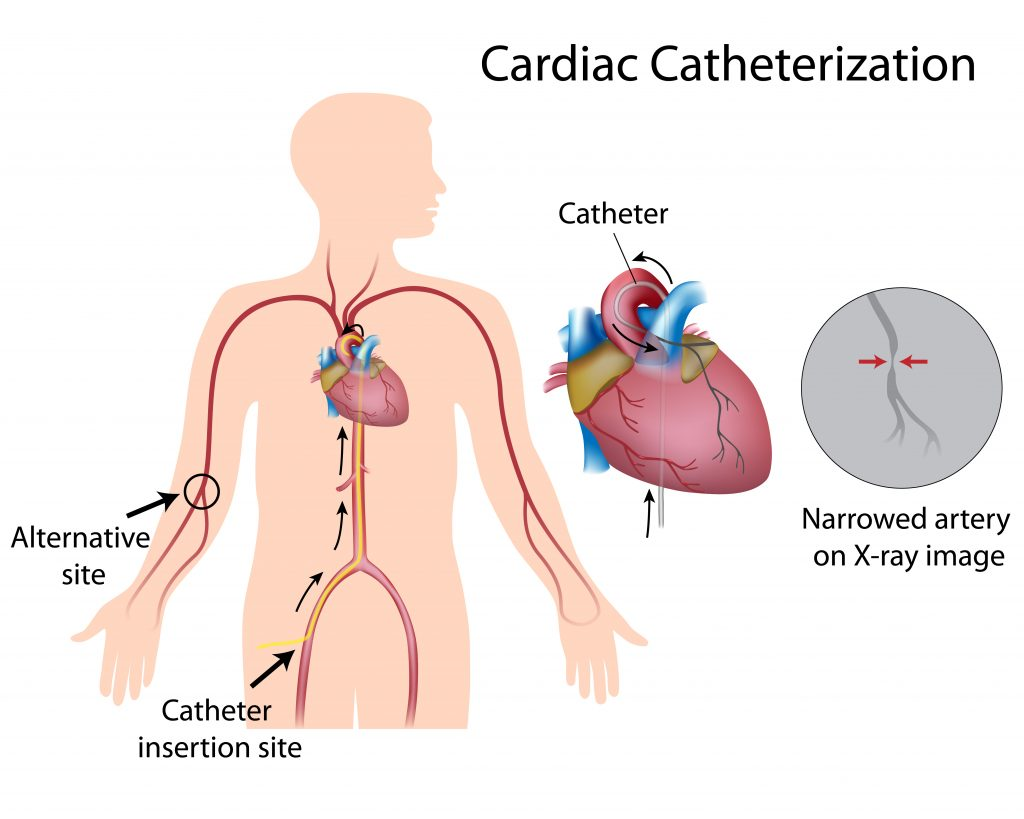 lokasi masuknya kateter ke pembuluh darah