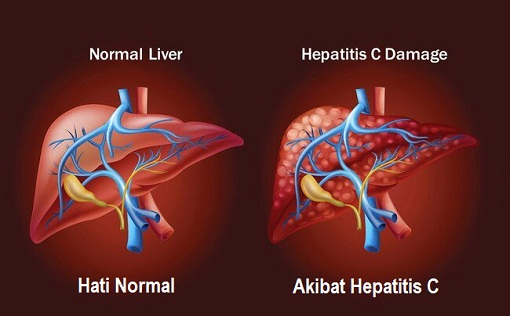 Kondisi Hati Normal dan Hepatitis C