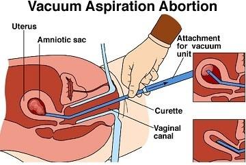 aborsi dengan metode vacuum