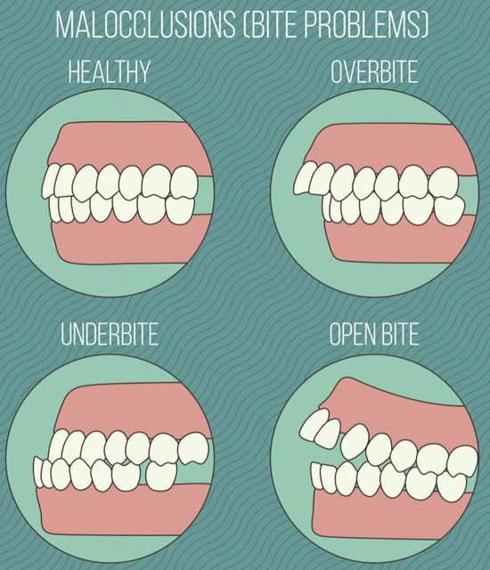 gigi tonggos