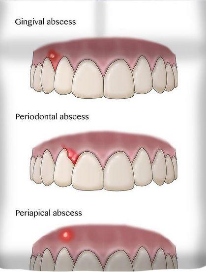 jenis abses gigi