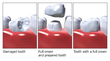 gigi palsu crown