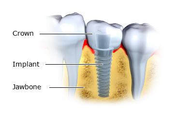 implan gigi dan gigi palsu