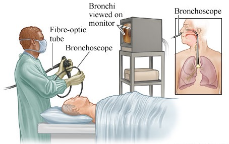 prosedur bronkoskopi