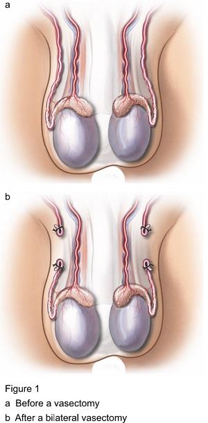 vasektomi bilateral