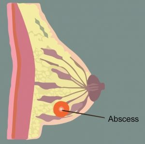 abses payudara
