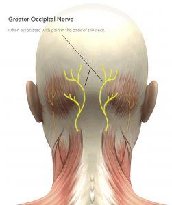 neuralgia oksipital