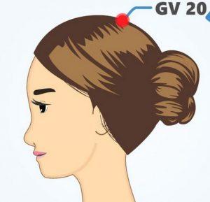 titik akupunktur GV20