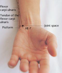 titik akupunktur ht7