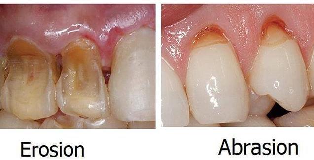 perbedaan abrasi dan erosi gigi