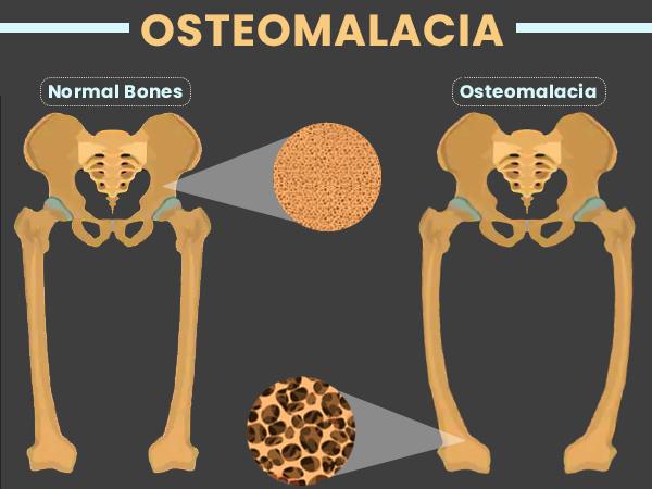 Osteomalasia