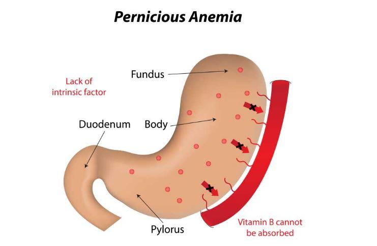 Anemia Pernisiosa