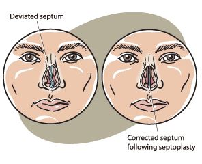 septoplasty