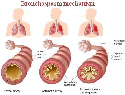 Bronkospasme