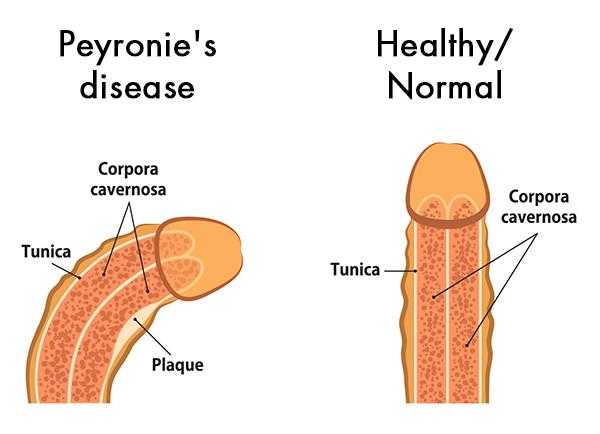 Penyakit Peyronie