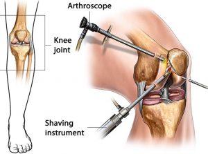 Artroskopi