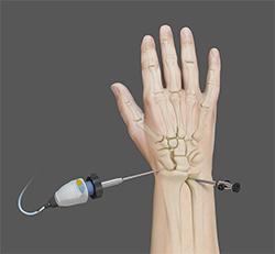 artroskopi pergelangan tangan