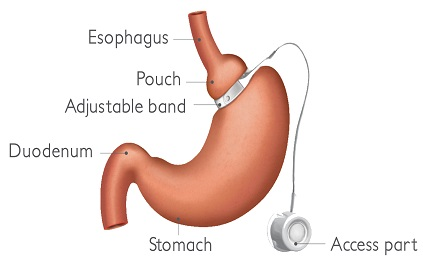 gastric banding laparoskopi