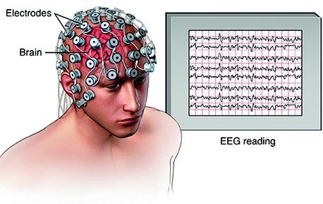 Elektroensefalogram