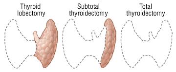 operasi tiroid