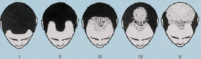 pola rambut rontok pria