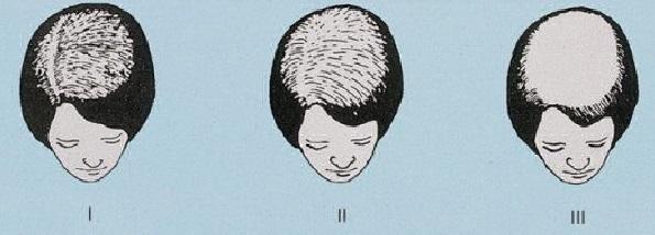 pola rambut rontok wanita
