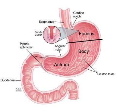 Gastoparesis