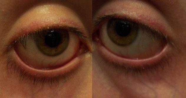 Mata Cekung