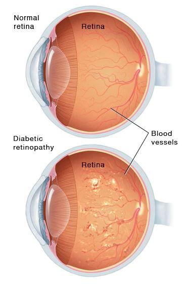retinopati diabetik