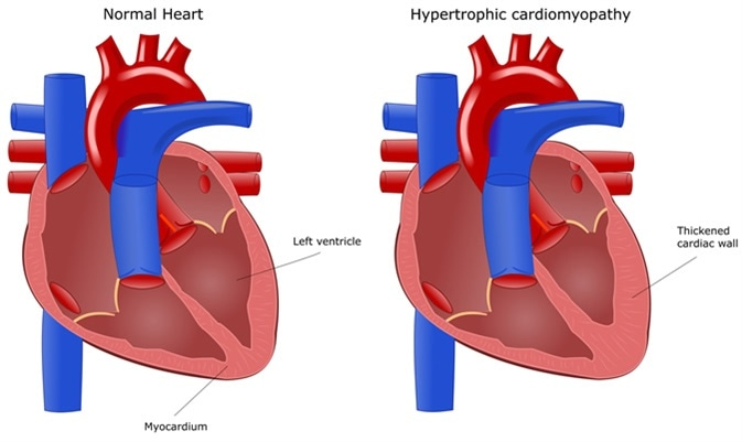 Kardiomiopati Hipertrofi