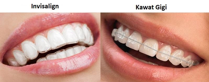perbedaan invisalign dan kawat gigi